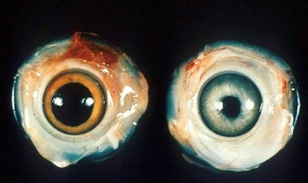 Слева — здоровый глаз, справа — больной