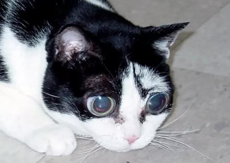 Двухсторонняя глаукома